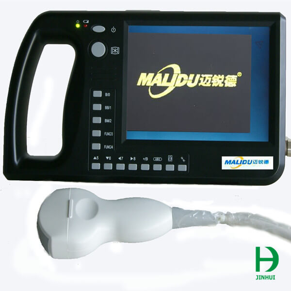 ultrasound machine portable